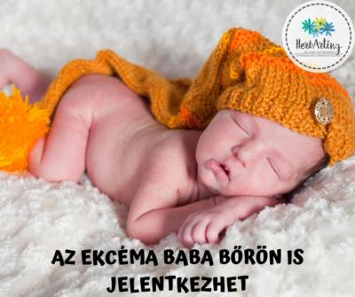 Az ekcéma baba bőrön is jelentkezhet szakértői cikk HerbArting