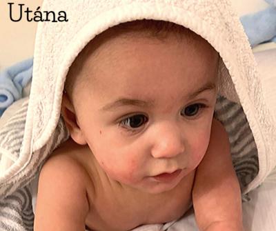 Zsombor ekcémás baba arc HerbArting szakértői cikk kezelés után