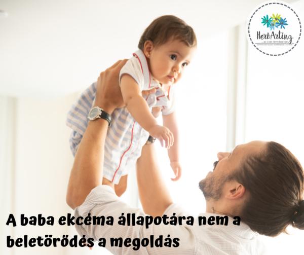 A baba ekcéma állapotára nem a beletörődés a megoldás