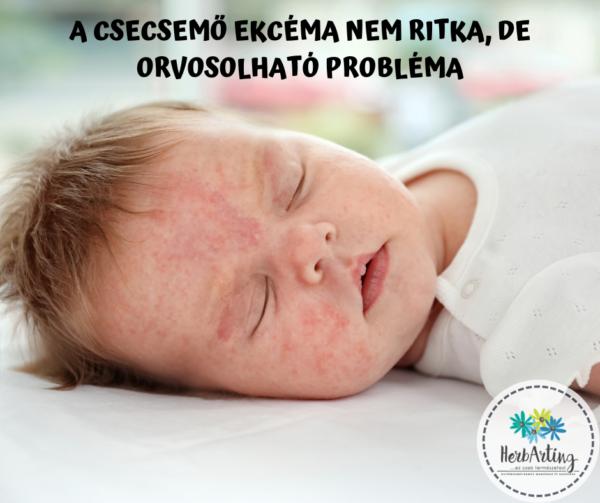 A csecsemő ekcéma nem ritka, de orvosolható probléma szakértői cikk HerbArting