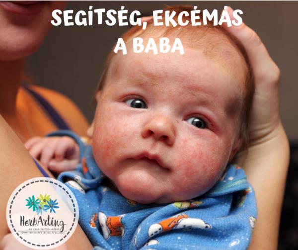 Segítség, ekcémás a baba!