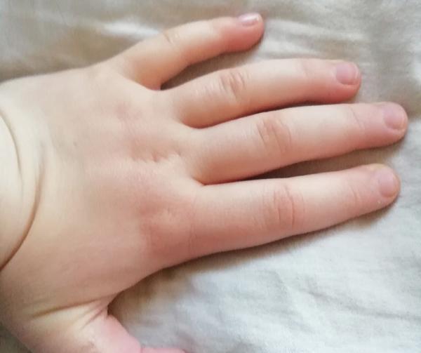Kató ekcémás gyerek kéz HerbArting kezelés után