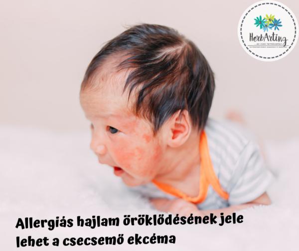 Allergiás hajlam öröklődésének jele lehet a csecsemő ekcéma szakértői cikk HerbArting